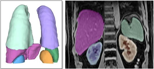 Automatic segmentation of organs on a CT scan
