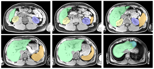 Automatic Segmentation of the Liver, the Spleen, the Heart and the Kidneys on MRI slices, trained with Deep Learning