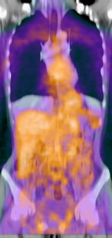 PET and CT image of melanoma patient, image fusion, initial placement, compensation for breating motion
