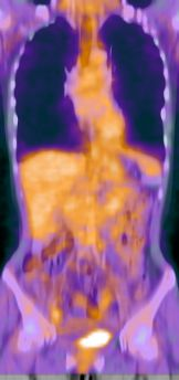 PET and CT image of melanoma patient, image fusion, compensation for breating motion, non-rigid registration, elasitc registration